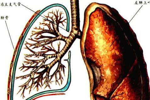 气管炎偏方