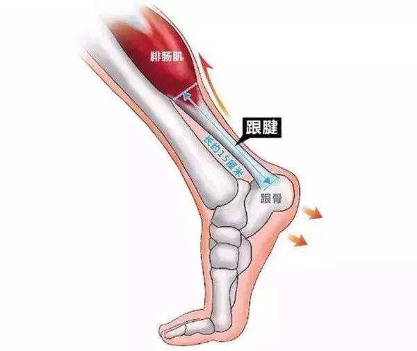 小腿肌肉拉伤