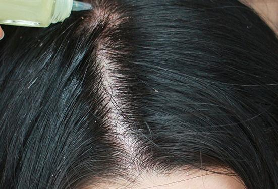 面粉+米醋治疗头发油腻的偏方