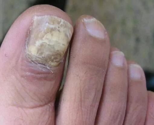 治灰指甲的偏方,有谁用过治断根的?