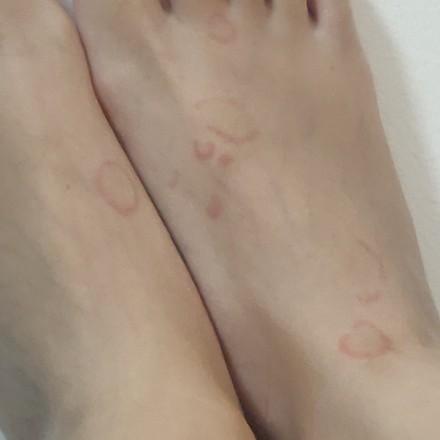 腿部荨麻疹照片