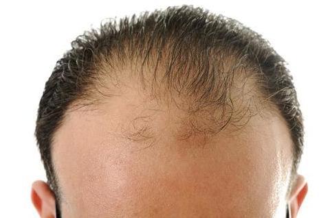 脂溢性脱发